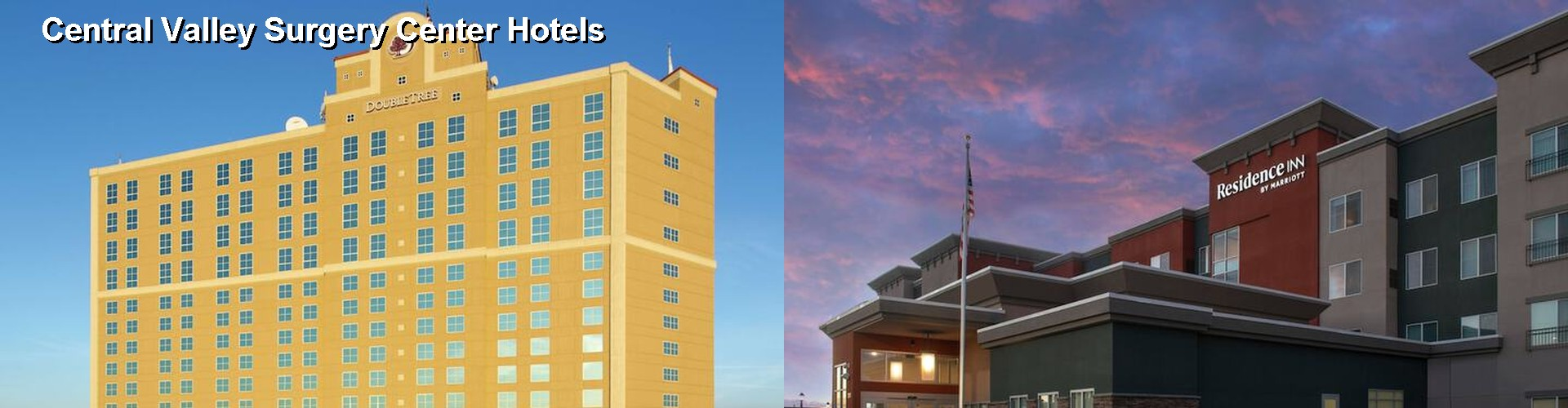 5 Best Hotels near Central Valley Surgery Center