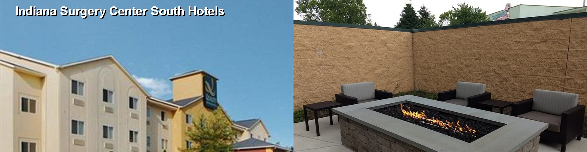 5 Best Hotels Near Indiana Surgery Center South
